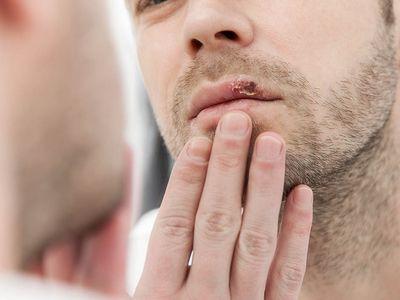 4 handige tips bij koortsblazen